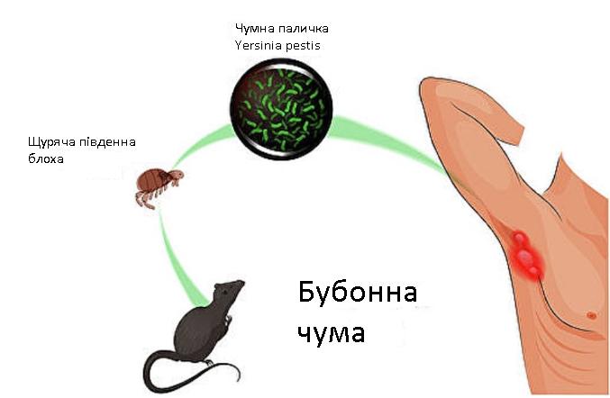 Бубонна чума